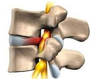 治疗骨质增生的中成药有哪些