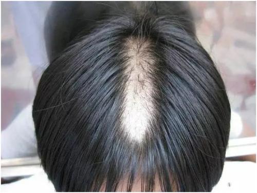 中医治疗斑秃的偏方