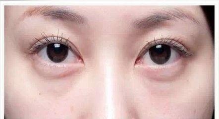 治疗眼袋的偏方有哪些