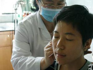 中医治面瘫之腹针疗法