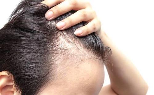 脱发患者一定要知道的三个方剂