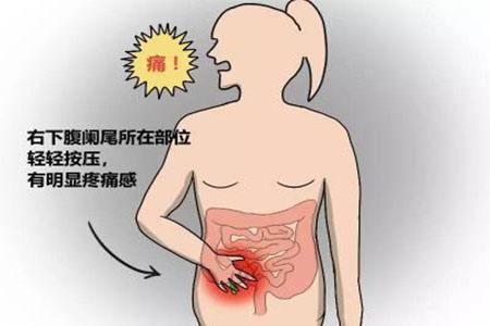 阑尾炎患者须知的两则食疗方子