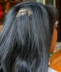 女性脱发偏方有哪些