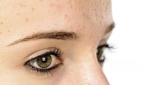 治疗不同皮肤病的偏方