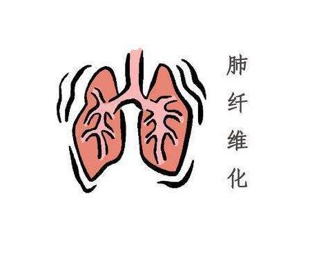 中医可以治疗肺纤维化吗