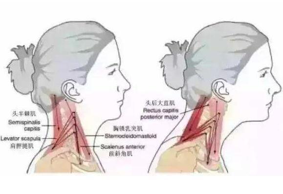 治疗颈椎病的偏方有哪些