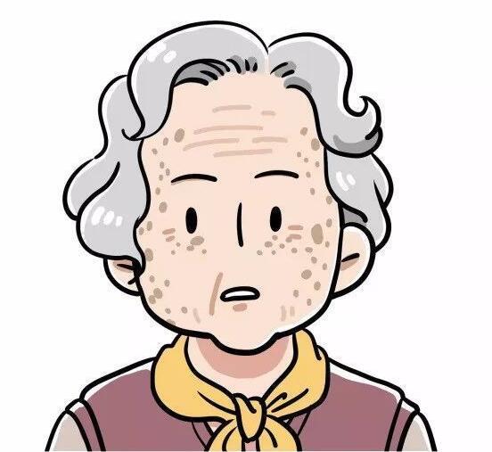 中医治疗老年斑的偏方